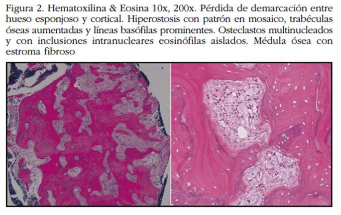 adenocarcinoma prostatico 3 4 2