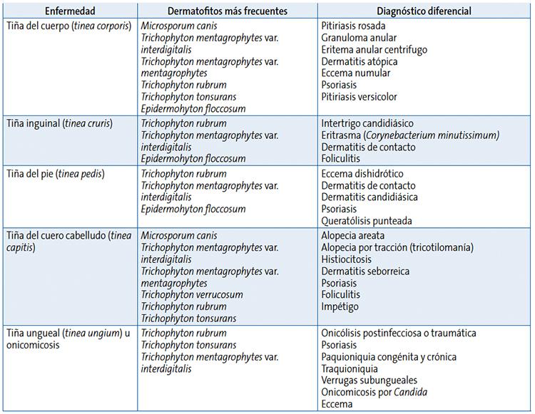 Intertrigo candidiasico tratamiento topico